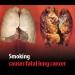 OMS...alertá sobre efectos del tabaco