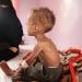 ONU...conflicto en Yemen causa mutilación a 8 niños por día
