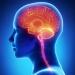 De la Anestesia Raquídea a la  cirugía de Bypass Cerebral