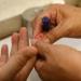 Sin tratamiento preventivo 75 por ciento de pacientes con hemofilia